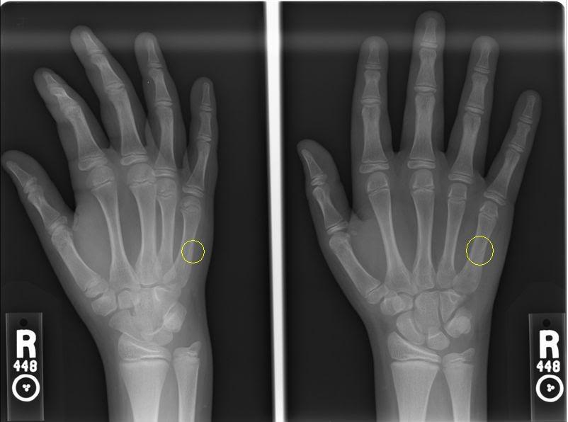 notes on non-displaced fractures of fifth metacarpals | new, Cephalic vein